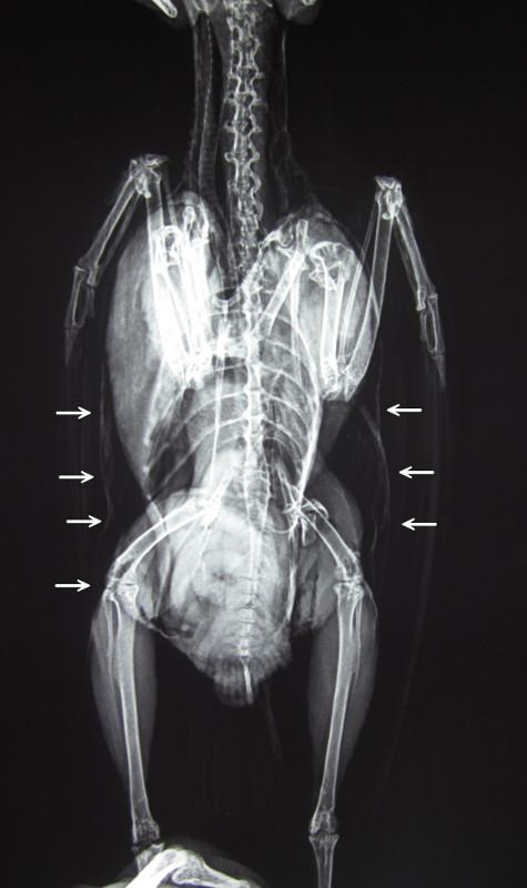 事故による皮下気腫